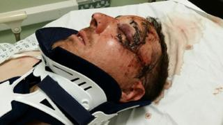 Assault victim. Pic: Devon and Cornwall Police