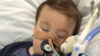 Alfie Evans con un ventilador pulmonar. Foto: cortesía página de Facebook de Alfie's Army.