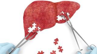 Ilustração mostra o fígado composto por pequenas peças de um quebra-cabeça