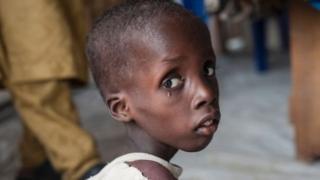 UNICEF Borno eyaletindeki kliniklerinde binlerce kişiye yardım ediyor