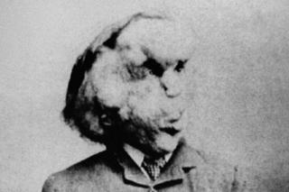 Joseph Carey Merrick, known as the Elephant Man, is shown in a photo from the Radiological Society of North America