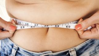 England's North East region has the most weight loss operations on the NHS