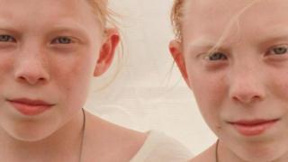 जुड़वा इंसान