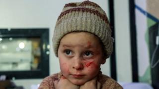 Uma criança Síria na região de Ghouta com manchas de sangue sa batalha, em 3 de março de 2018