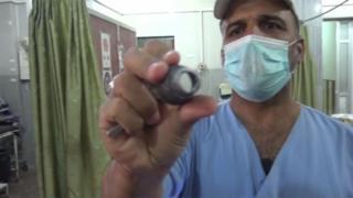 Médico mostra munição que expodiu hospital