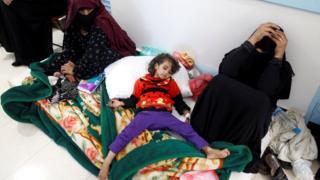 Yemen'de koleradan etkilenen bir kız