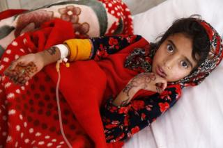 A Yemeni girl who is infected with cholera receives treatment at a hospital in Sana'a, Yemen