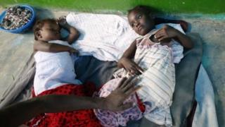 Больные дети на Гаити