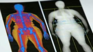 Representação de gordura no corpo