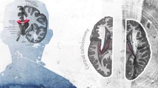इंसानी दिमाग दो हिस्सों में बंटा होता है