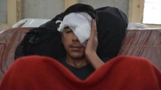 पेलेट गन से घायल कश्मीरी किशोर