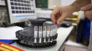 qan analizi Hepatit B Hepatit C