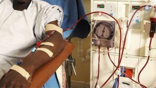 Pesin dey do im hemodialysis