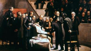 Una ilustración de la primera demostración pública del uso de la anestesia en el Hospital General de Massachusetts en 1846.