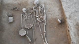 skeleti para