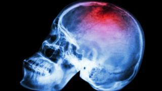 Imagem de um crânio