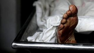 Leg for morgue