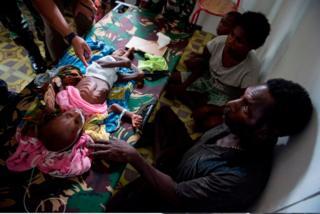 Bayi dan keluarga penderita kelaparan Agats