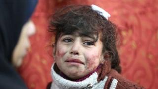 સીરિયાના હુમલામાં ઘાયલ થયેલી બાળકીની તસવીર