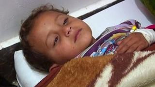 الكوليرا تفتك بحياة العشرات في اليمن