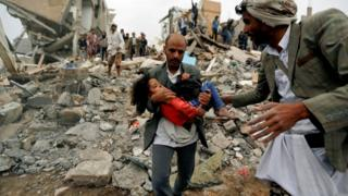 A man carries Buthaina Muhammad Mansour, a Yemeni girl rescued from the site of a Saudi-led coalition air strike that killed eight of her family members in Sanaa on 25 August 2017