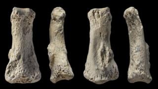 Four images showing different sides of a finger bone