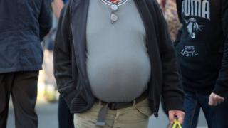 Obese person