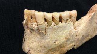 Neolithic jaw