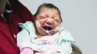 bebe con microcefalia