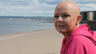 Gail Porter: 'Everyone saw me naked, inside I was breaking'