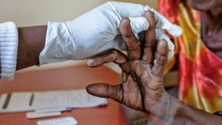 Perawatan malaria