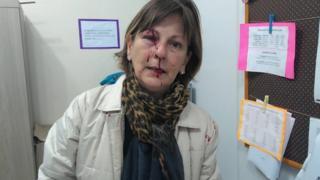 Professora mostra resultado de agressão em sala de aula