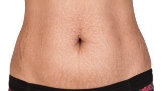 Estrías en el abdomen