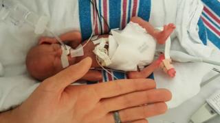 Connor em julho de 2018, poucos dias após nascer, ao lado da mão do pai, John Florio