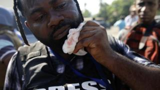 Photojournalist Dieu Nalio-Chery holds a gauze next to his mouth in Port-au-Prince, Haiti