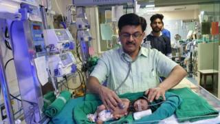 India newborn girl found in shallow grave 'fighting for life'