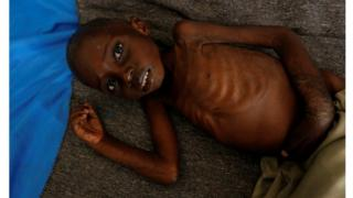 A malnourished child in Kasai