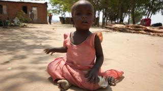 Child in Malawi Africa