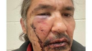 Athabasca Chipewyan First Nation Chief Allan Adam after a violent arrest