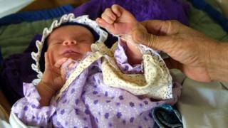 Parmakları yapışık doğmuş bir bebek