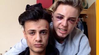 James y Dain después del ataque.