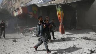 رجل يحمل طفلة جريحة بعد قصف بلدة دوما