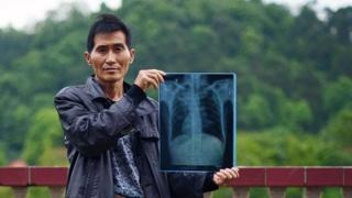 一名湖南的尘肺病患者。