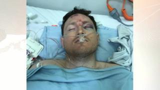 Chris Toon in hospital