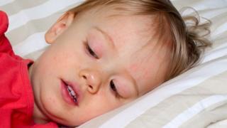 يتعرض الأطفال دون العاشرة للإصابة بالمرض