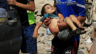 Banyak warga sipil mengungsi keluar dari Mosul bagian barat, beberapa di antaranya menggendong anak yang terluka.