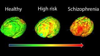 전문가들은 실험을 통해 조현병 환자에게 뇌의 피질 부피 감소와 같은 해부학적 이상을 포함해 각종 뇌 기능 이상이 발생하는 것을 밝혀냈다