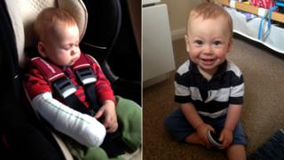 Joshua after the accident (l) and recovering (r)