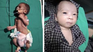 India newborn found alive in shallow grave now thriving