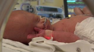 세리의 아기 잭슨이 출생 후 병원 집중관리실에 누워 있다